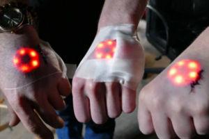 LED implants