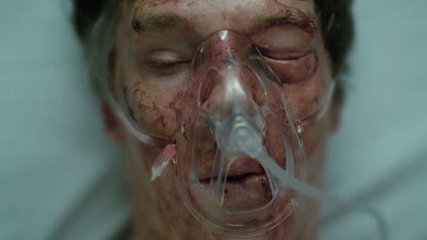 Doctor Strange Benedict Cumberbatch Ouch.jpg