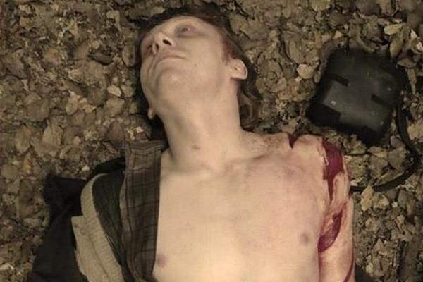 Ron Weasley Dead