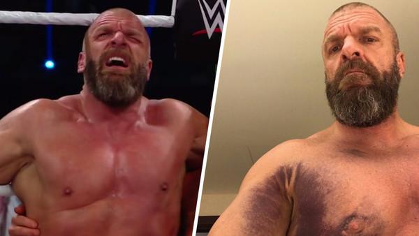 Triple H Injury