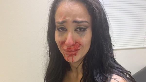 Aliyah broken nose